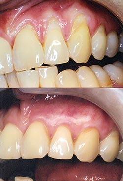 Periodontal plastic surgery and different gum grafting techniques ...