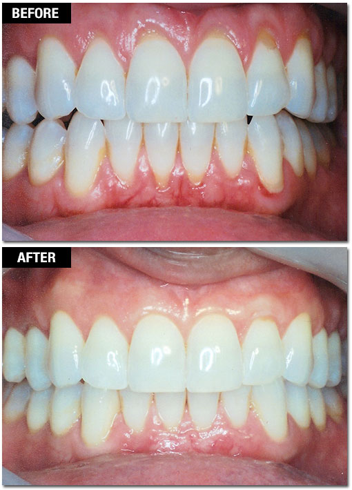 Smile Enhancement - Before and After