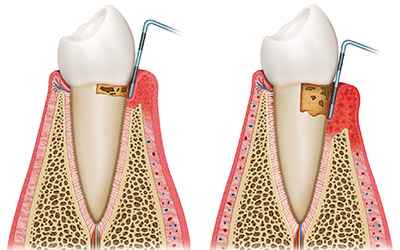 Periodontal (Gum Disease) Therapy