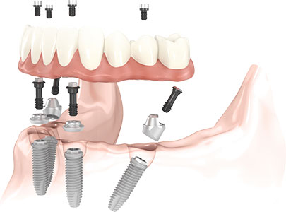 Cross Section Implant
